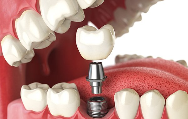 Dental implant cartoon image - shows tooth being screwed in